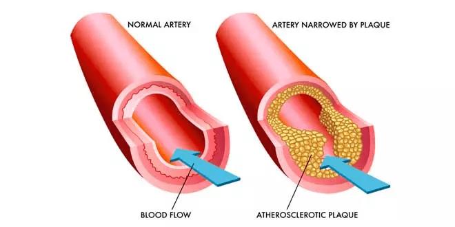 Arterie ostruite e la soluzione con Omega 3
